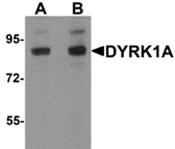 AP26122PU-N - DYRK1A