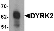 AP26123PU-N - DYRK2