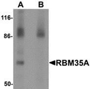 AP26107PU-N - ESRP1 / RBM35A