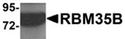AP26108PU-N - ESRP2 / RBM35B