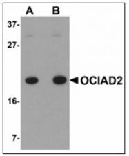 AP23912PU-N - OCIAD2