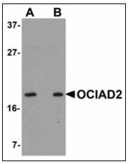 AP23913PU-N - OCIAD2