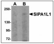 AP23918PU-N - SIPA1L1
