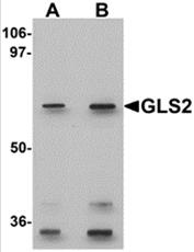 AP26111PU-N - Glutaminase liver isoform