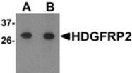 AP26167PU-N - HDGF2