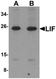AP26120PU-N - Leukemia inhibitory factor