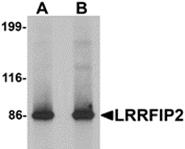 AP26113PU-N - LRRFIP2