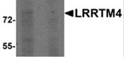 AP26099PU-N - LRRTM4