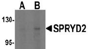 AP26166PU-N - Myospryn