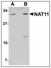 AP23929PU-N - NAT11