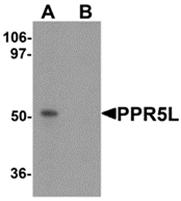 AP26127PU-N - PRR5L