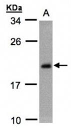 AP31082PU-N - Caveolin-3