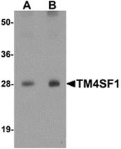 AP26117PU-N - TM4SF1