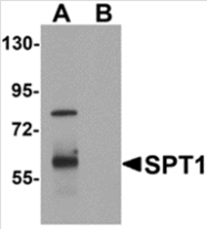 AP26147PU-N - Translin (TSN)