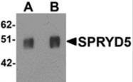 AP26171PU-N - TRIM51 / SPRYD5