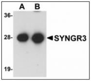 AP23936PU-N - Synaptogyrin-3 / SYNGR3