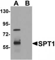 AP26144PU-N - Vasohibin-1 / VASH1