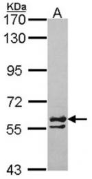 AP31084PU-N - CCT6A / TCP1 zeta