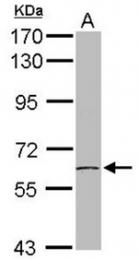 AP31085PU-N - CCT7 / TCP1 eta