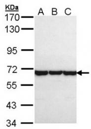 AP31086PU-N - CCT8 / TCP1 theta