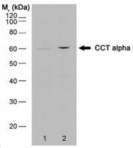 SM2173P - CCT1 / TCP1