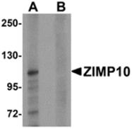AP26131PU-N - ZMIZ1 / RAI17