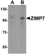 AP26130PU-N - ZMIZ2