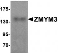 AP26089PU-N - ZMYM3