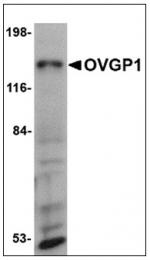 AP23959PU-N - Mucin-9