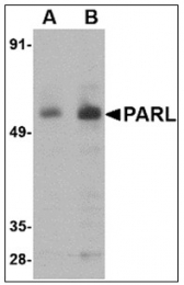 AP23960PU-N - PARL