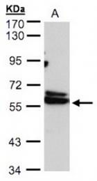 AP31089PU-N - CCT4 / TCP1 delta