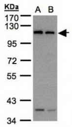 AP31090PU-N - Dynamin-2
