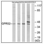 AP23837PU-N - GPR52