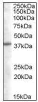 AP23839PU-N - Sorting nexin-16 (SNX16)