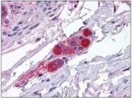 AP23841PU-N - CDC42BPA