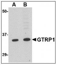 AP23847PU-N - GRTP1 / TBC1D6