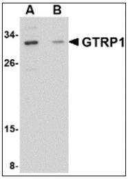 AP23848PU-N - GRTP1 / TBC1D6
