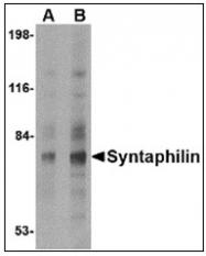 AP23851PU-N - Syntaphilin / SNPH