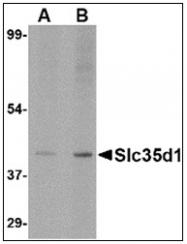 AP23853PU-N - SLC35D1 / UGTREL7