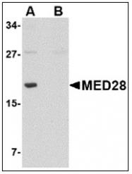 AP23858PU-N - MED28