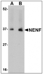 AP23859PU-N - Neudesin