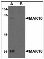 AP23885PU-N - NAA35 / MAK10