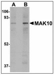 AP23886PU-N - NAA35 / MAK10