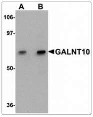 AP23887PU-N - GALNT10