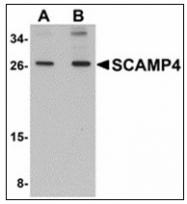 AP23889PU-N - SCAMP4