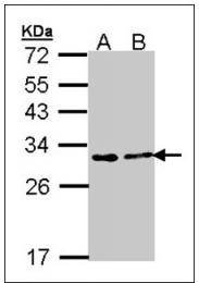 AP23896PU-N - FKBP3 / FKBP25