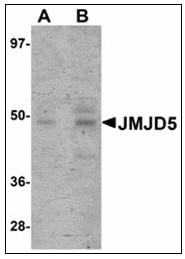 AP23901PU-N - JMJD5
