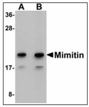 AP23910PU-N - Mimitin