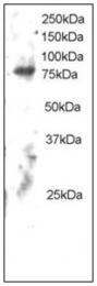 AP23813PU-N - ELMO2