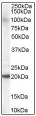 AP23816PU-N - ARL6IP5 / JWA